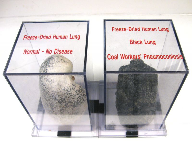 A display case at NIOSH shows a normal lung and a diseased black lung, caused by inhaling coal dust and other harmful particles while coal mining